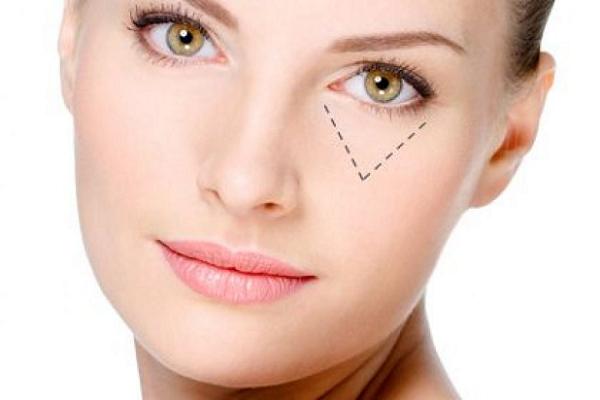 cách làm xóa nếp nhăn vùng mắt, cách xóa nếp nhăn vùng mắt, cách làm mờ nếp nhăn ở mắt, cách làm giảm nếp nhăn vùng mắt, cách làm giảm nếp nhăn ở mắt