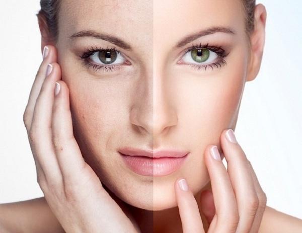 so sánh thermage và ultherapy, công nghệ trẻ hóa da thermage, các phương pháp trẻ hóa da, giá nâng cơ mặt bằng chỉ, công nghệ thermage giá bao nhiêu