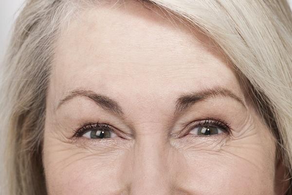 Xóa nếp nhăn vùng mắt tại Nevada có tốt không?