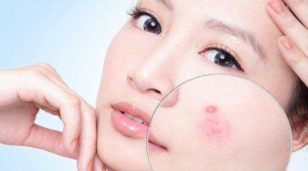 cách phục hồi da mặt bị hư tổn tại nhà, cách phục hồi da mặt bị hư tổn, cách chăm sóc da mặt bị hư tổn, chăm sóc da mặt bị hư tổn, phục hồi da mặt hư tổn, phục hồi da mặt, cách phục hồi da mặt, da bị hư tổn nặng, da mặt bị hư tổn, cách phục hồi da, phục hồi da, cách phục hồi da bị hư tổn, da bị hư tổn, cách phục hồi da hư tổn, cách chăm sóc da mặt bị hư tổn, phục hồi da mặt bị hư tổn, phục hồi da hư tổn, phục hồi làn da hư tổn, cách hồi phục da mặt, phục hồi da bị hư tổn, cách phục hồi làn da bị hư tổn, da hư tổn nặng, phục hồi da hư tổn sau mụn, phuc hoi da, da mặt hư tổn