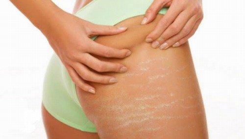 cách chữa rạn da ở tuổi dậy thì, bị rạn da tuổi dậy thì, cách trị rạn da ở tuổi dậy thì, cách trị rạn da tuổi dậy thì, cách trị nứt da ở tuổi dậy thì, rạn da ở tuổi dậy thì