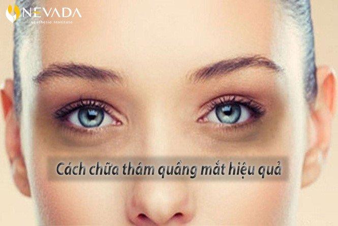 Làm cách nào để hết thâm quầng mắt? Gợi ý ngay 6 cách đơn giản