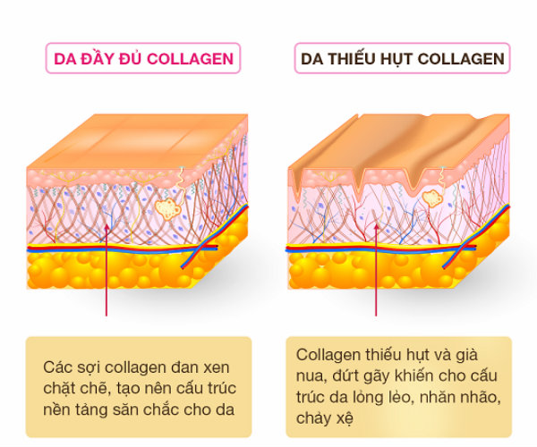 Collagen của Nhật loại nào tốt, collagen nhật loại nào tốt, collagen nhật bản loại nào tốt, collagen đẹp da của nhật, collagen nhật nào tốt, collagen của nhật có tốt không, collagen nào của nhật tốt nhất, collagen của nhật loại nào tốt nhất, Collagen 82x, Collagen Super Collagen CoQ10, collagen cá hồi, collagen meiji amino, collagen shiseido, Nano Hyaluronic Acid And Collagen Ogaland