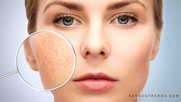 mặt nạ cho da nhờn và lỗ chân lông to mặt nạ cho da nhờn lỗ chân lông to, đắp mặt nạ cho da nhờn và lỗ chân lông to, đắp mặt nạ cho da nhờn lỗ chân lông to