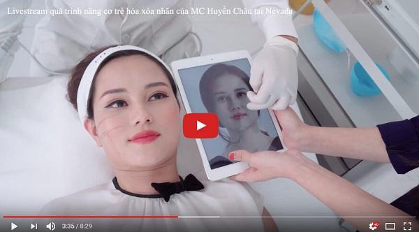 Livestream MC Huyền Châu trải nghiệm nâng cơ xóa nhăn Ultherapy