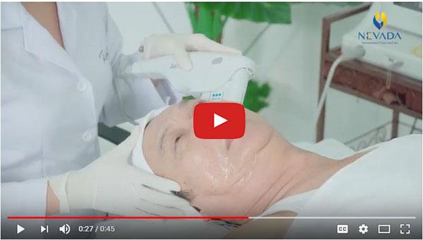 Diễn viên Mai Huỳnh (Gạo nếp gạo tẻ) trải nghiệm công nghệ Ultherapy