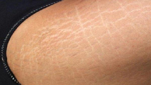 rạn da ở bắp chân, chữa rạn da ở bắp chân, trị rạn da ở bắp chân, cách chữa rạn da ở bắp chân, nguyên nhân rạn da ở bắp chân, làm sao để hết rạn da ở bắp chân, bị rạn da ở bắp chân, cách làm hết rạn da ở bắp chân, cách trị rạn da ở bắp chân, vết rạn da ở bắp chân