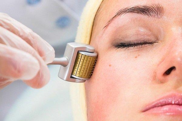 tác dụng của lăn kim tế bào gốc, lăn kim tế bào gốc là gì, lăn kim tế bào gốc có tác dụng gì, cách lăn kim tế bào gốc tại nhà