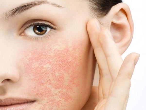 Làn da bị tàn phá thế nào nếu dùng công nghệ nâng cơ Ultherapy giả