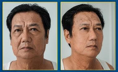 cơ sở nâng cơ trẻ hóa da tại thẩm mĩ viện nevada