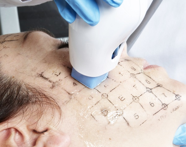 nâng cơ trẻ hóa da mặt thermage