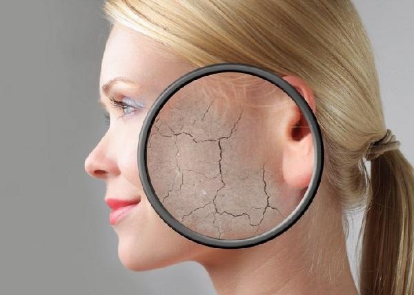 Khi cơ thể dư thừa cortisol có thể gặp tình trạng da mặt tái xám, khô nứt, bong tróc
