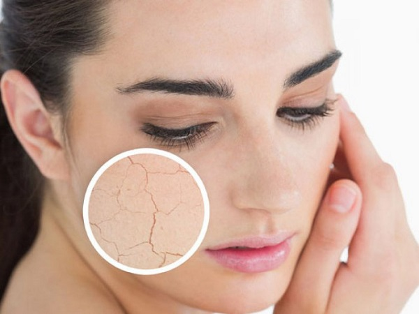 nguyên nhân gây lão hóa da, các nguyên nhân gây lão hóa da, nguyên nhân gây ra lão hóa da, những nguyên nhân gây lão hóa da, nguyên nhân gây lão hóa