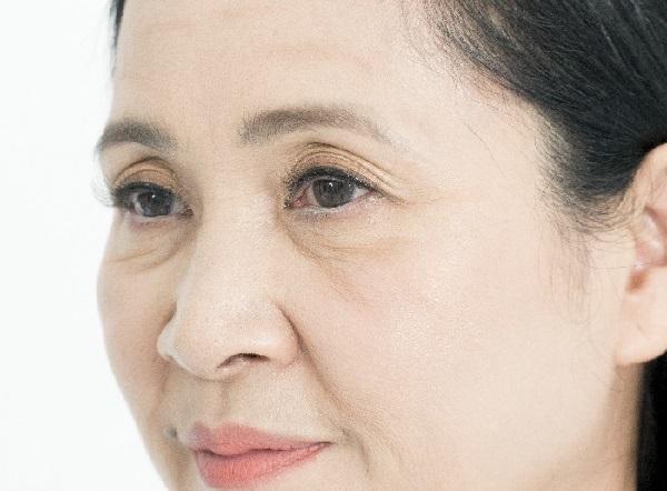 liệu trình xóa nhăn vùng mắt