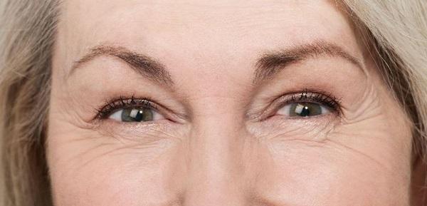 nguyên nhân gây nếp nhăn ở mắt, nguyên nhân gây ra nếp nhăn ở mắt, nguyên nhân gây nếp nhăn mắt