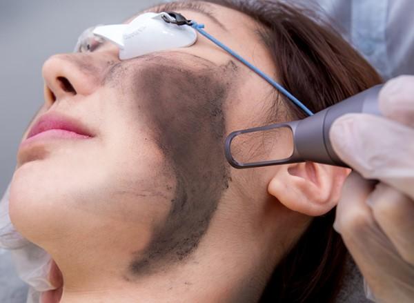 phương pháp trẻ hóa da bằng than hoạt tính