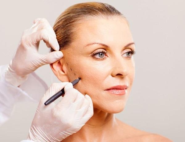 Căng da mặt ở đâu an toàn? – Giải đáp từ chuyên gia thẩm mỹ