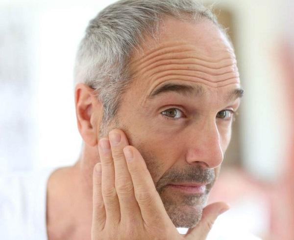 Căng da trán xuất hiện nhiều ở độ tuổi trung niên
