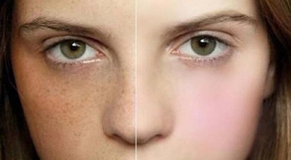 Nâng cơ xóa nhăn mặt bằng CN Ultherapy có xóa được tàn nhang không?