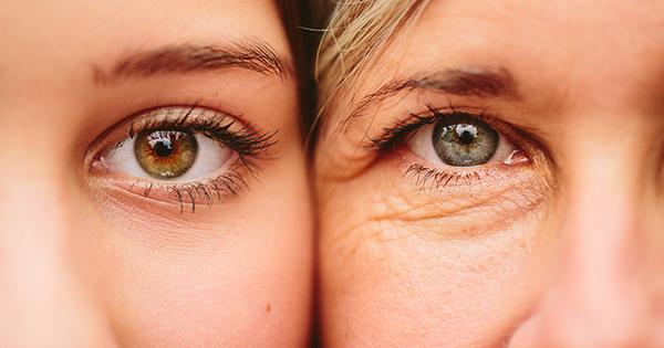 Cách xóa nếp nhăn vùng mắt đơn giản, hiệu quả mà bạn không ngờ tới