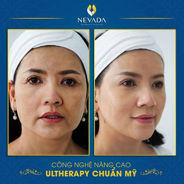 cách làm sạch da mặt tự nhiên, cách làm sạch da mặt, cách làm sạch da