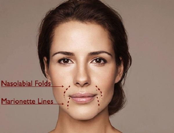 Tự tin với làn da căng mịn với cách xóa nếp nhăn rãnh mũi má tại nhà