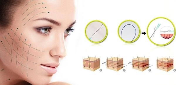 nâng cơ mặt có hại không, nâng cơ mặt, công nghệ ultherpay, ultherapy, Themage, công nghệ Themage, botox, filler, nâng cơ căng da bằng chỉ, tiêm botox, tiêm filler