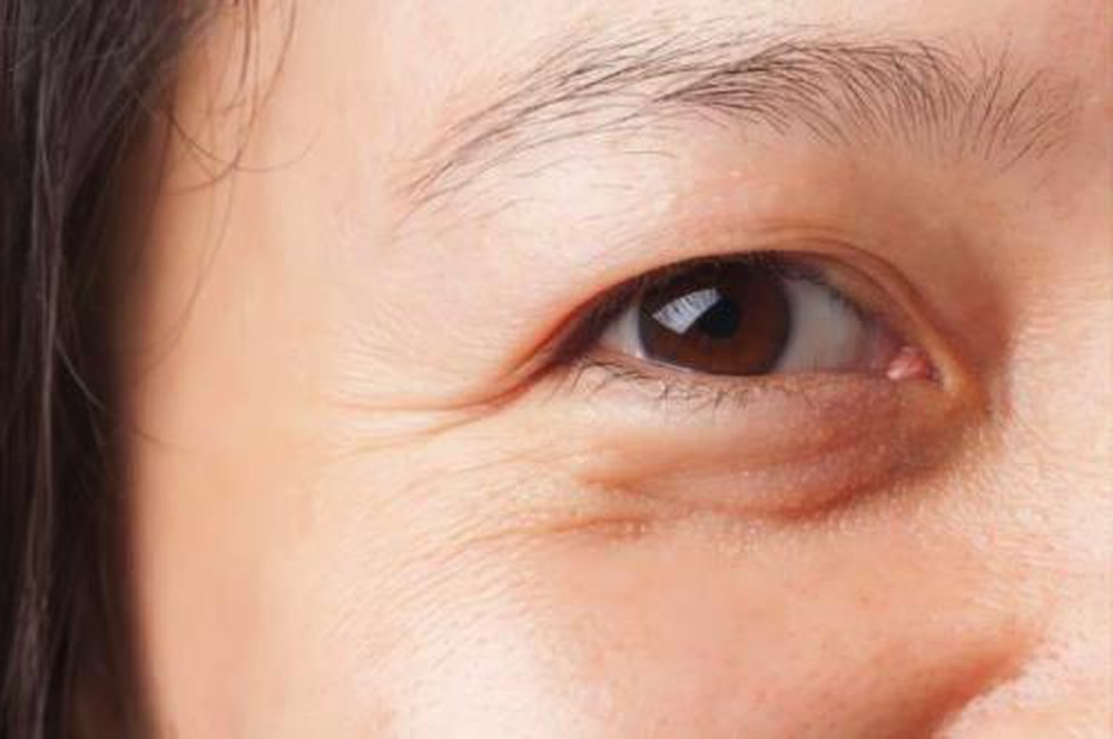 Cách nhận biết về dấu hiệu lão hoá da quanh mắt và biện pháp ngăn ngừa HIỆU QUẢ nhất