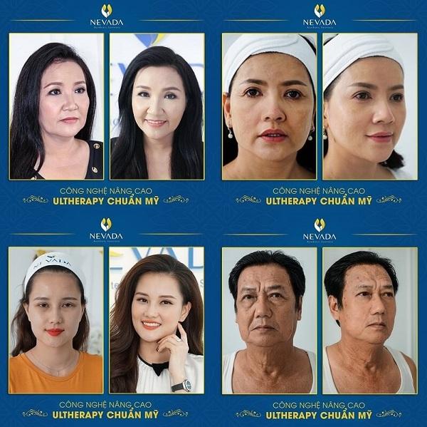 nên chống lão hóa từ bao nhiêu tuổi chống lão hóa từ bao nhiêu tuổi, chống lão hóa da từ sớm, chống lão hóa, chống lão hóa da, ngăn lão hóa da