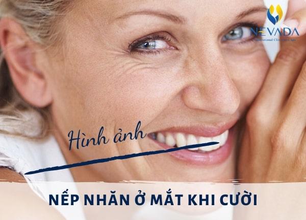 nếp nhăn ở mắt khi cười, nếp nhăn đuôi mắt khi cười, cách cười không bị nhăn mắt, nếp nhăn khi cười, cười bị nhăn đuôi mắt, cười có nếp nhăn, cười có nếp nhăn ở mắt, khi cười có nhiều nếp nhăn ở dưới mắt làm thế nào cho hết nhăn khi cười, da mặt bị nhăn khi cười, khi cười có nếp nhăn ở mắt, nếp nhăn mắt khi cười, nếp nhăn cười, nhăn đuôi mắt khi cười, cười bị nhăn mắt, cười nhiều có nếp nhăn, cười nhăn mặt
