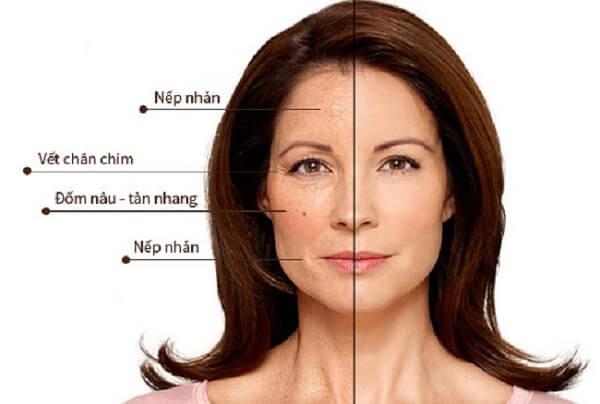 trẻ hóa da mặt bằng công nghệ