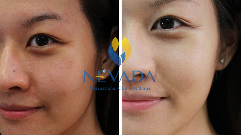 luxy skin, chăm sóc da luxy skin, liệu trình chăm sóc da luxy skin, chăm sóc da chuyên sâu luxy skin, liệu trình chăm sóc da chuyên sâu luxy skin