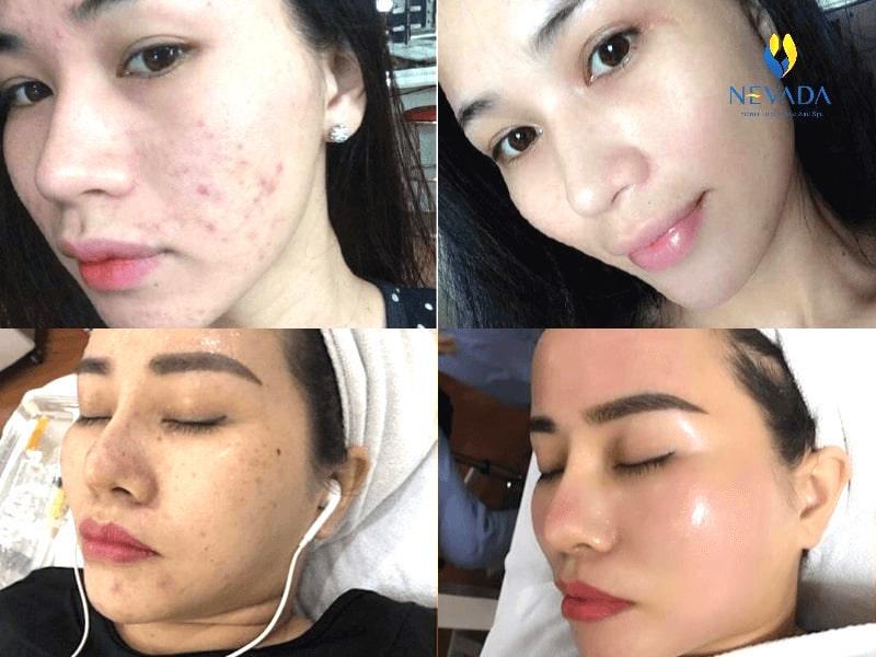 chăm sóc da chuyên sâu, Luxy Skin