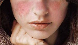 Làm sao để mặt không có nếp nhăn, xóa nếp nhăn trên mặt tại nhà, cách xóa nếp nhăn tại nhà, cách trị nếp nhăn trên mặt, làm thế nào để không có nếp nhăn trên mặt