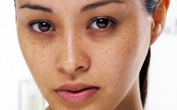 nguyên nhân da không đều màu, nguyên nhân da mặt không đều màu, nguyên nhân khiến da mặt không đều màu, nguyên nhân làm da không đều màu