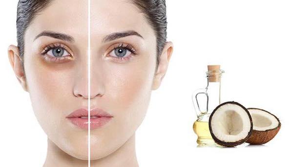 cách xóa nếp nhăn vùng mắt bằng dầu dừa, xóa nếp nhăn vùng mắt bằng dầu dừa