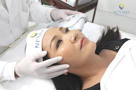 Dịch vụ nâng cơ ULTHERAPY làm trẻ hóa làn da