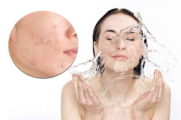 rửa mặt bằng nước lạnh, rửa mặt bằng nước lạnh có tốt không, rửa mặt bằng nước lạnh có tác dụng gì, rửa mặt bằng nước đá lạnh có tốt không, rửa mặt bằng nước đá mỗi ngày