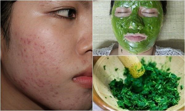 đắp mặt nạ rau má trị mụn, mặt nạ rau má trị mụn, cách đắp mặt nạ rau má trị mụn