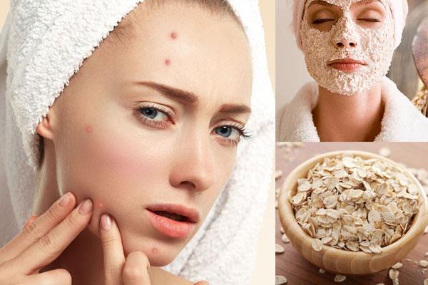 Cách làm mặt nạ bột yến mạch trị mụn