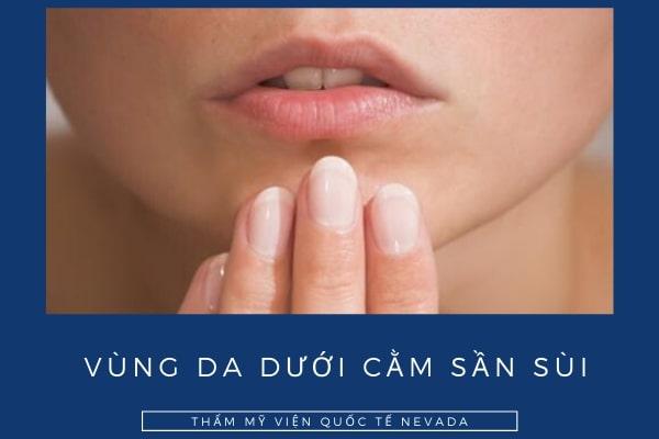 Nguyên nhân vùng da dưới cằm sần sùi và cách khắc phục