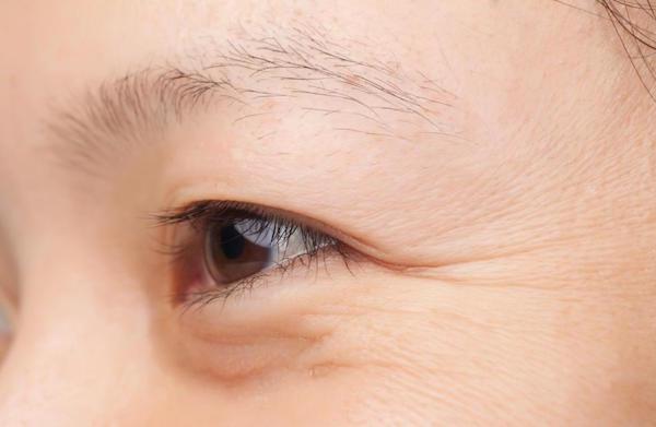 Xoá nếp nhăn vùng mắt