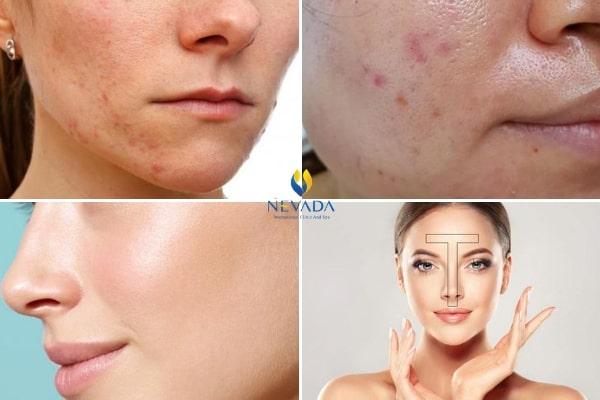 cách xác định loại da, cách xác định loại da mặt, xác định loại da mặt, cách xác định da thuộc loại nào, cách xác định các loại da, cách xác định loại da đơn giản, làm sao để xác định loại da, làm thế nào để xác định loại da
