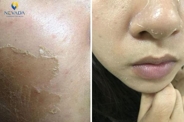 có nên tái tạo da mặt không, có nên dùng tái tạo da không