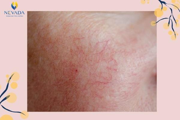 da mỏng có nên tái tạo da không, da mỏng yếu phải làm sao, da mặt mỏng phải làm sao, da mỏng yếu nên dùng gì, da mặt mỏng phải làm thế nào