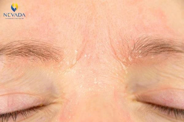 nguyên nhân da bị khô, nguyên nhân gây khô da, nguyên nhân da mặt bị khô, nguyên nhân khiến da mặt bị khô, nguyên nhân da mặt khô, vì sao da mặt bị khô, nguyên nhân gây khô da mặt, hiện tượng da mặt bị khô, nguyên nhân bị khô da